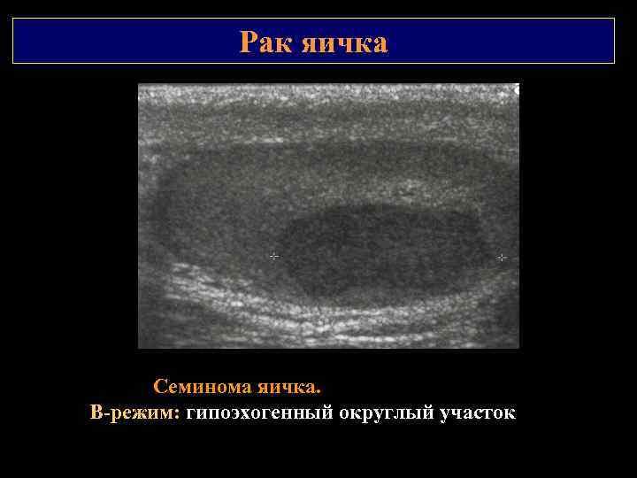 Рак яичка Семинома яичка. В режим: гипоэхогенный округлый участок