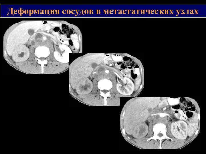 Деформация сосудов в метастатических узлах