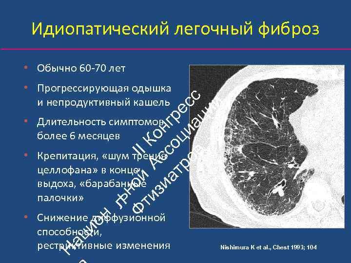 Идиопатический легочный фиброз • Обычно 60‐ 70 лет ьн Ф ой II ти А