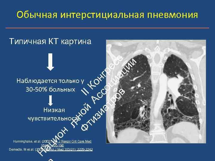 Обычная интерстициальная пневмония ьн Ф ой II ти А К зи с он ат