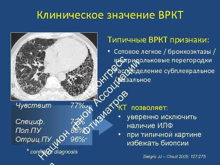 Клиническое значение ВРКТ Типичные ВРКТ признаки: ац ио Специф. Пол. ПУ Отриц. ПУ 77%