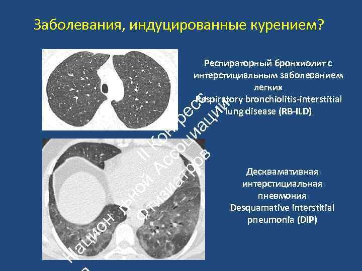 Заболевания, индуцированные курением? Н ац ио н ьн Ф ой II ти А К