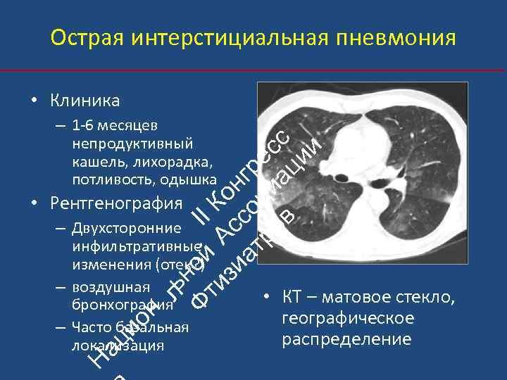Острая интерстициальная пневмония • Клиника ьн Ф ой II ти А К зи с