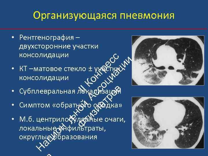 Организующаяся пневмония ьн Ф ой II ти А К зи с он ат со