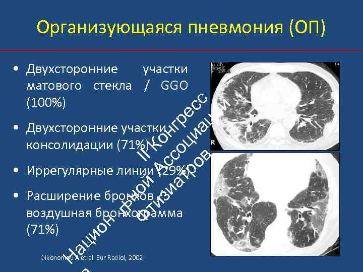 Организующаяся пневмония (ОП) ьн Ф ой II ти А К зи с он ат