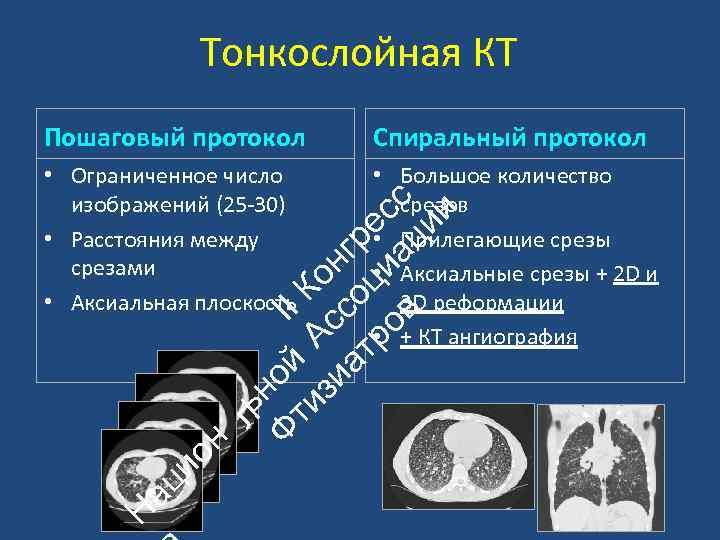 Тонкослойная КТ Спиральный протокол • Ограниченное число изображений (25‐ 30) • Расстояния между срезами