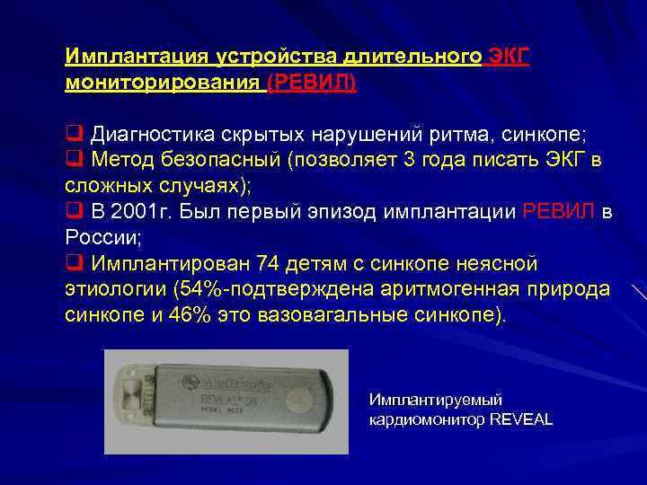 Имплантация устройства длительного ЭКГ мониторирования (РЕВИЛ) q Диагностика скрытых нарушений ритма, синкопе; q Метод