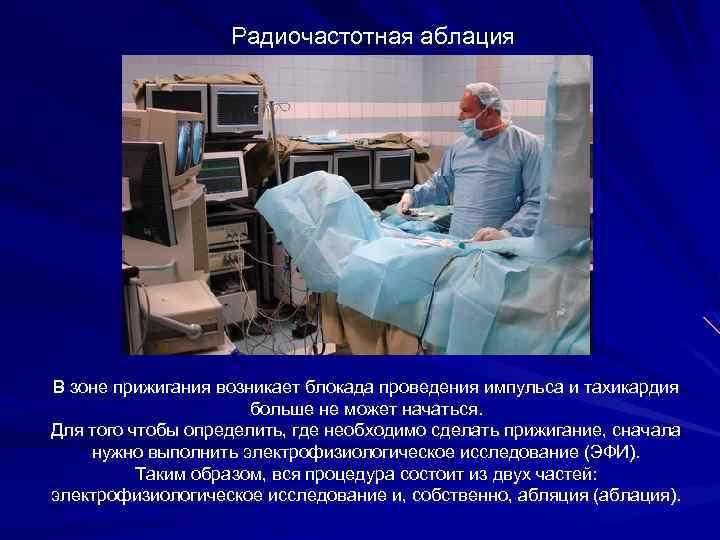 Радиочастотная аблация В зоне прижигания возникает блокада проведения импульса и тахикардия больше не может