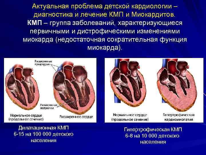 Актуальная проблема детской кардиологии – диагностика и лечение КМП и Миокардитов. КМП – группа