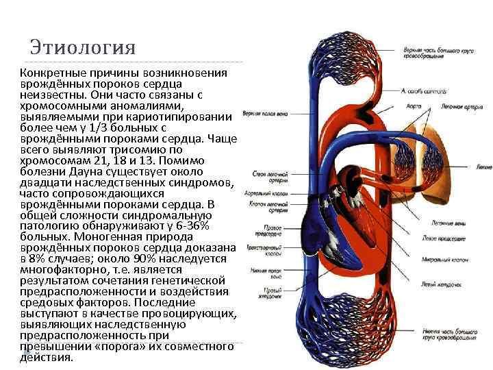 Этиология Конкретные причины возникновения врождённых пороков сердца неизвестны. Они часто связаны с хромосомными аномалиями,