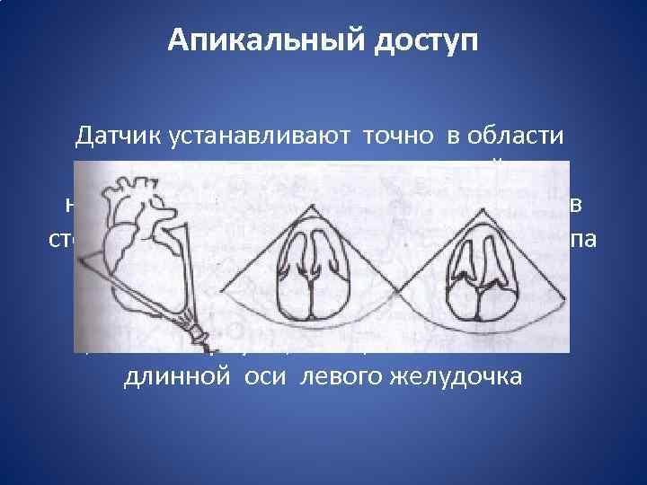 Апикальный доступ Датчик устанавливают точно в области верхушки сердца, ультразвуковой луч направляют вверх и