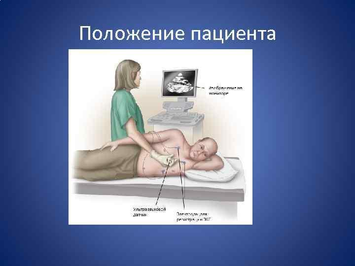 Положение пациента