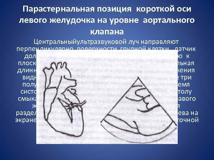 Парастернальная позиция короткой оси левого желудочка на уровне аортального клапана Центральныйультразвуковой луч направляют перпендикулярно