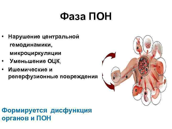 Фаза ПОН • Нарушение центральной гемодинамики, микроциркуляции • Уменьшение ОЦК, • Ишемические и реперфузионные