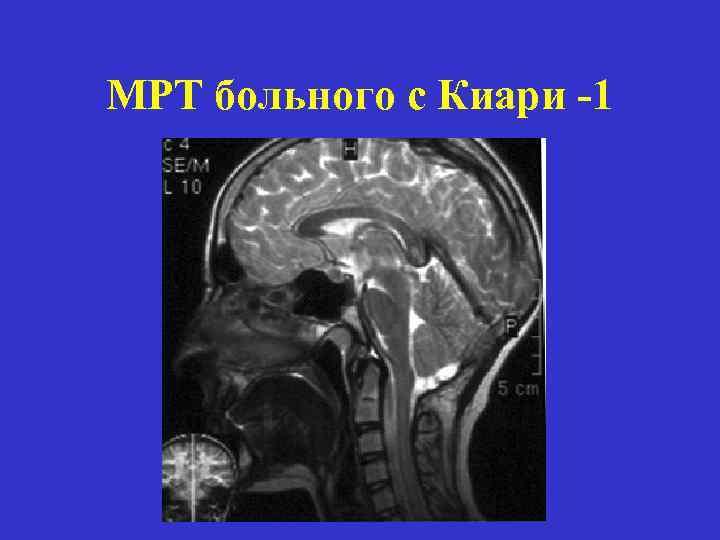 МРТ больного с Киари -1