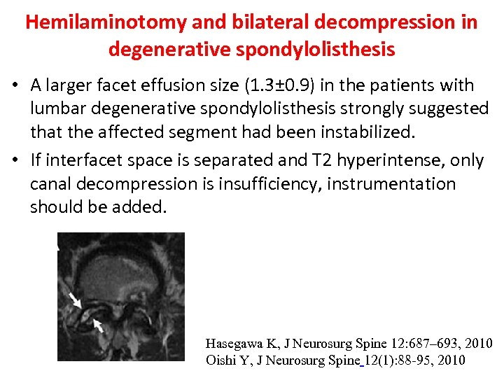 Hemilaminotomy and bilateral decompression in degenerative spondylolisthesis • A larger facet effusion size (1.