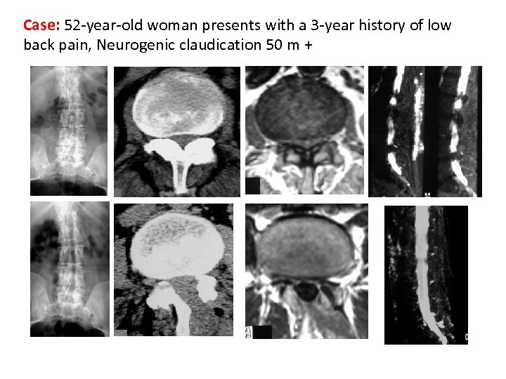 Case: 52 -year-old woman presents with a 3 -year history of low back pain,