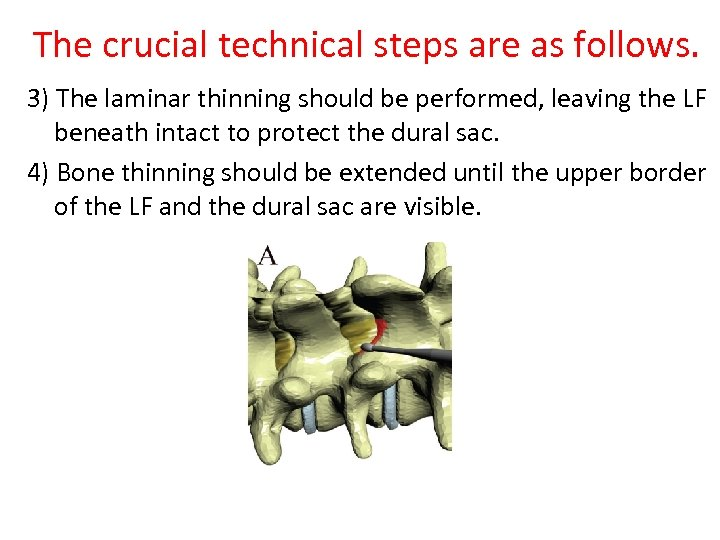 The crucial technical steps are as follows. 3) The laminar thinning should be performed,