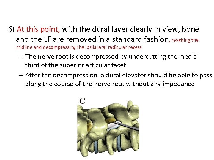 6) At this point, with the dural layer clearly in view, bone and the