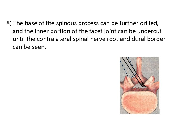 8) The base of the spinous process can be further drilled, and the inner