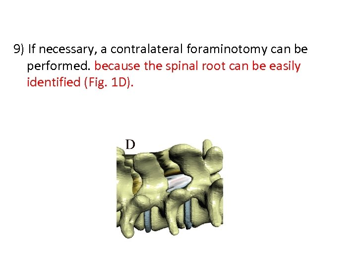 9) If necessary, a contralateral foraminotomy can be performed. because the spinal root can