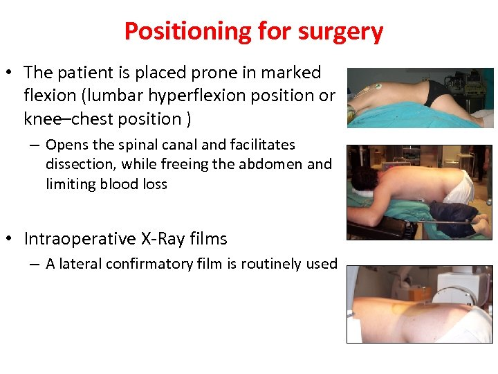 Positioning for surgery • The patient is placed prone in marked flexion (lumbar hyperflexion