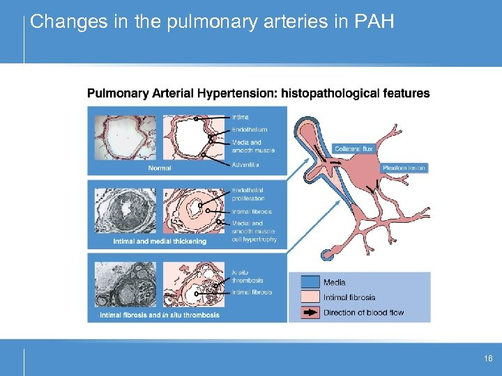Changes in the pulmonary arteries in PAH 16
