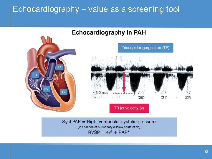 Echocardiography – value as a screening tool 32
