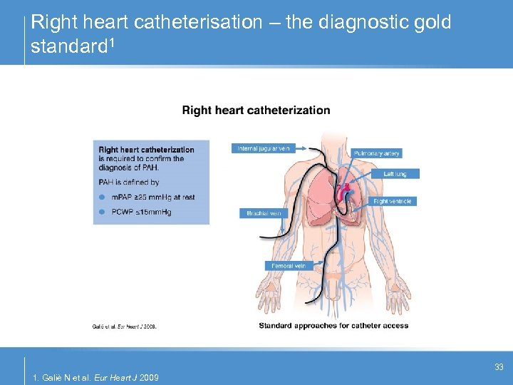 Right heart catheterisation – the diagnostic gold standard 1 33 1. Galiè N et