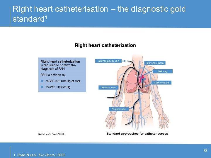Right heart catheterisation – the diagnostic gold standard 1 33 1. Galiè N et