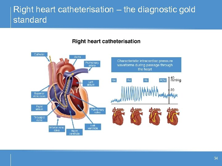 Right heart catheterisation – the diagnostic gold standard 34