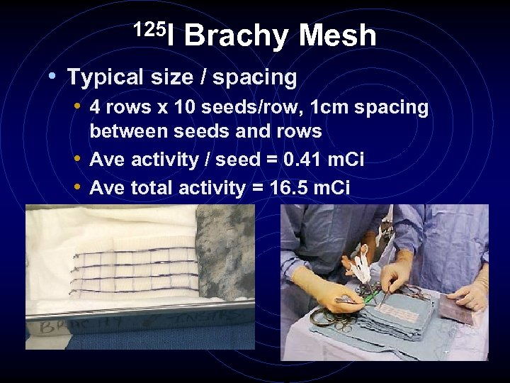 125 I Brachy Mesh • Typical size / spacing • 4 rows x 10