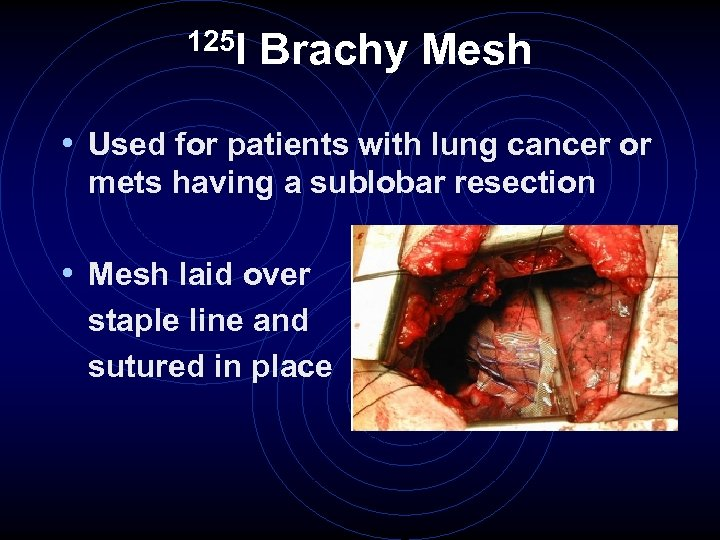 125 I Brachy Mesh • Used for patients with lung cancer or mets having