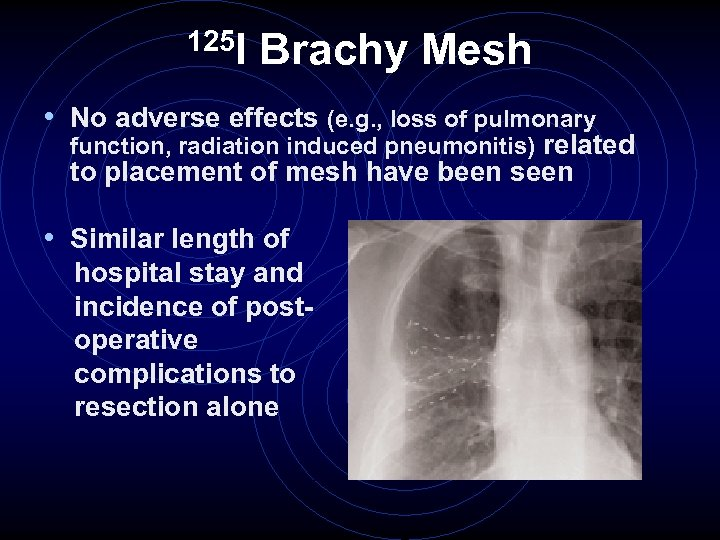 125 I Brachy Mesh • No adverse effects (e. g. , loss of pulmonary