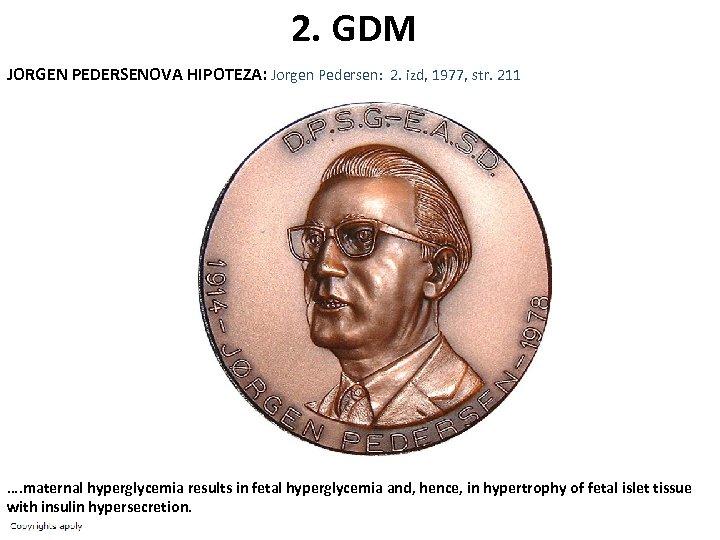 2. GDM JORGEN PEDERSENOVA HIPOTEZA: Jorgen Pedersen: 2. izd, 1977, str. 211 …. maternal