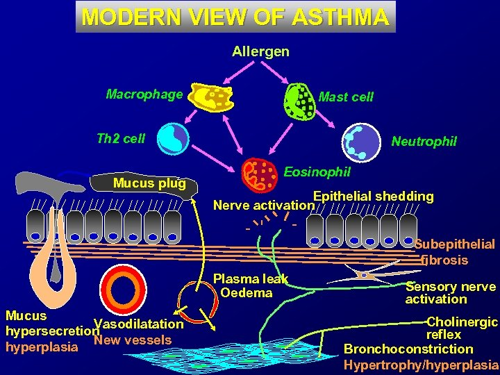MODERN VIEW OF ASTHMA Allergen Macrophage Mast cell Th 2 cell Mucus plug Neutrophil