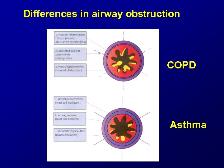 Differences in airway obstruction COPD Asthma