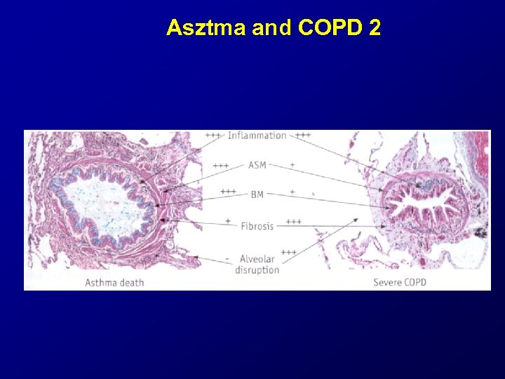 Asztma and COPD 2