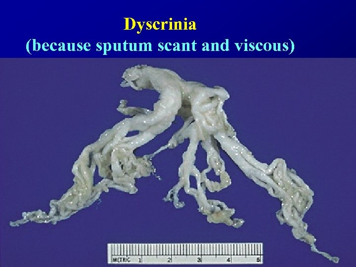 Dyscrinia (because sputum scant and viscous)