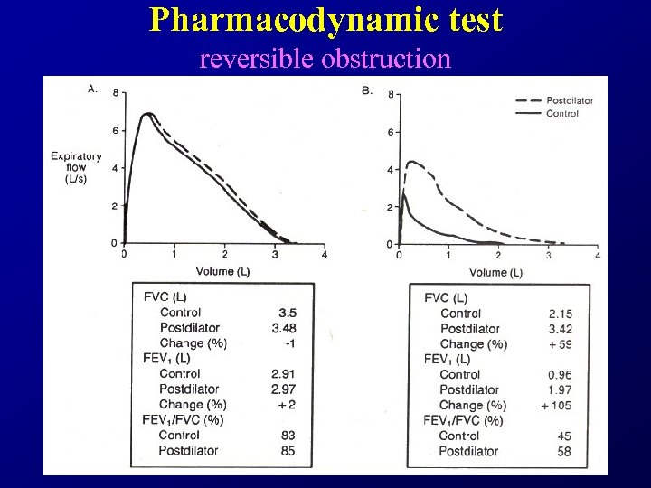 Pharmacodynamic test reversible obstruction