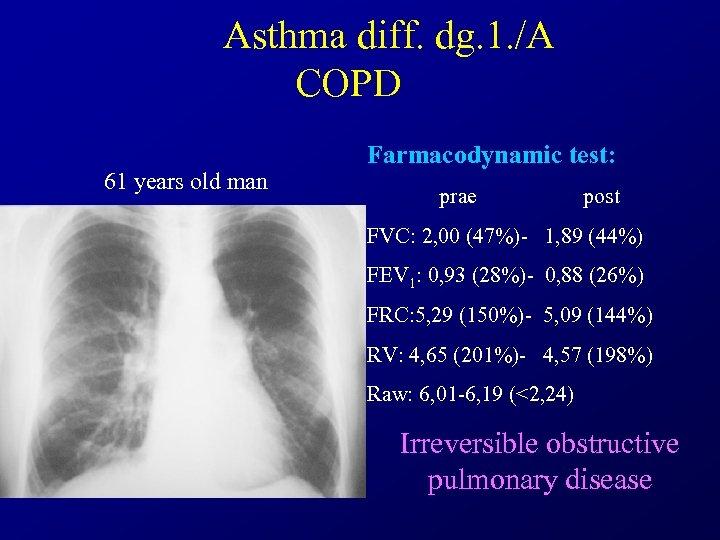 Asthma diff. dg. 1. /A COPD 61 years old man Farmacodynamic test: prae post