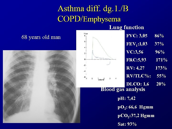 Asthma diff. dg. 1. /B COPD/Emphysema Lung function 68 years old man FVC: 3,