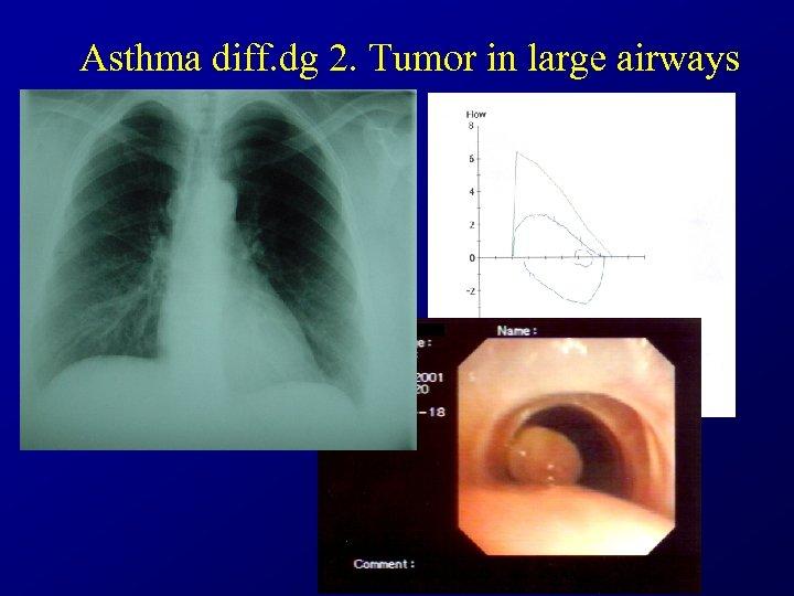 Asthma diff. dg 2. Tumor in large airways