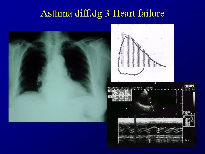 Asthma diff. dg 3. Heart failure