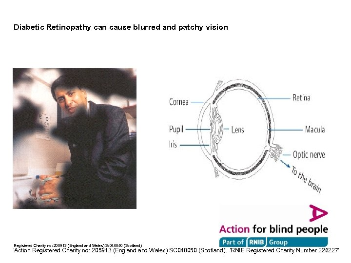 Diabetic Retinopathy can cause blurred and patchy vision Registered Charity no: 205913 (England Wales)