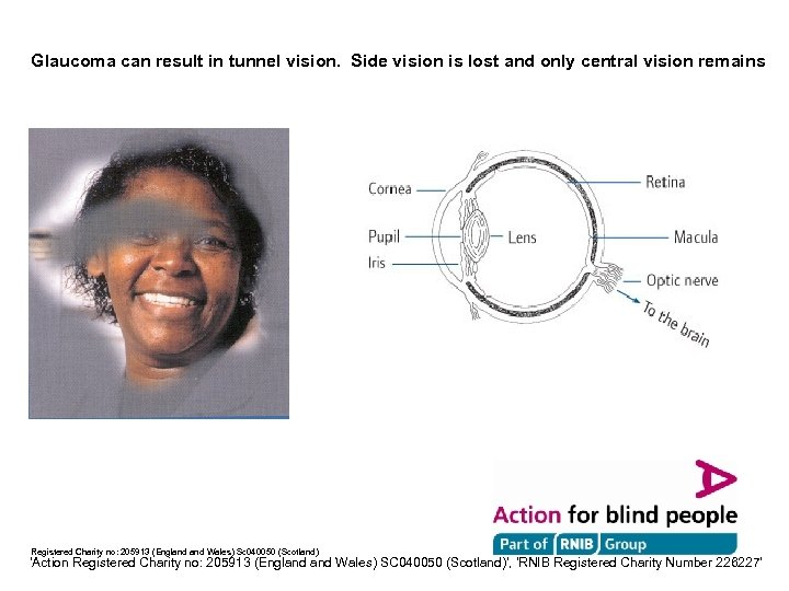Glaucoma can result in tunnel vision. Side vision is lost and only central vision