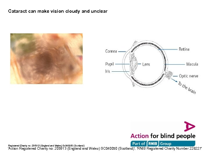 Cataract can make vision cloudy and unclear Registered Charity no: 205913 (England Wales) Sc