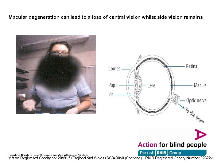 Macular degeneration can lead to a loss of central vision whilst side vision remains