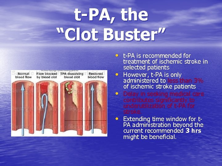 """t-PA, the """"Clot Buster"""" • t-PA is recommended for • • • treatment of"""