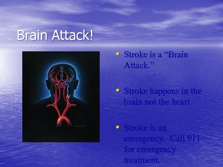 """Brain Attack! • Stroke is a """"Brain Attack. """" • Stroke happens in the"""